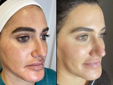 Skin Resurfacing With Opus Plasma