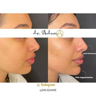 Chin Augmentation filler nose.jpg