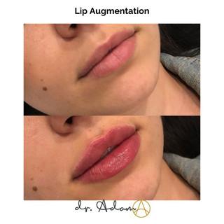 Lip Filler Aesthetica Chicago.jpg