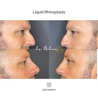 Liquid Rhinoplasty chicago.jpg