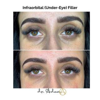 Infraorbital (Under-Eye) Filler Aesthetica Chicago.jpg