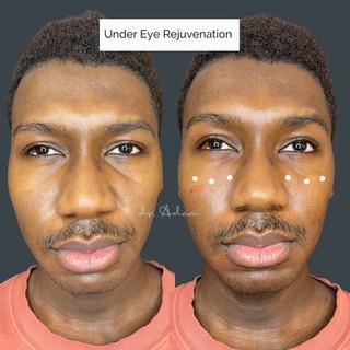 Under-Eye Filler.jpg