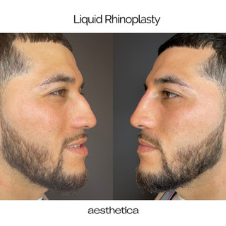 Aesthetica Liquid Rhinoplasty Chicago.jpg