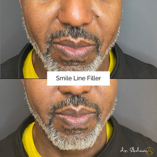 Smile Line Filler.jpg