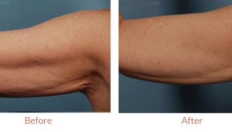 An Alternative to Liposuction: Body Contouring & Skin Tightening