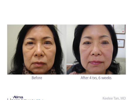 What is an IPL Facial?