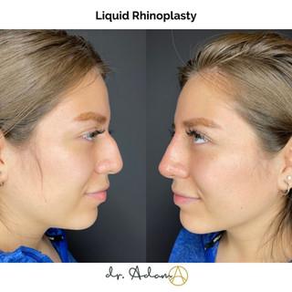 Aesthetica Liquid Rhinoplasty 2.jpg