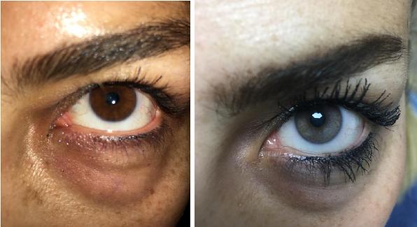 Change Your Eye Color in Turkey | Eye Color Change in Turkey