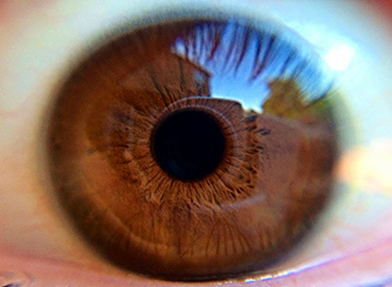 Fighting Alzheimer's with Eye Science?