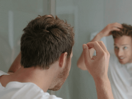 The Difference Between Dandruff and Product Build-Up