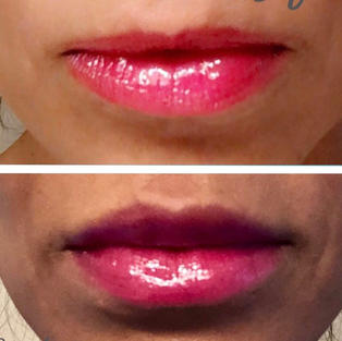Just Right Lip