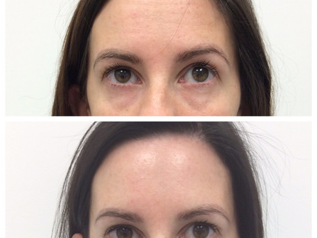 Botox ins-and-outs