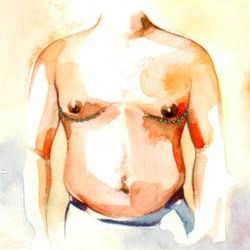 gynecomastia3.jpg