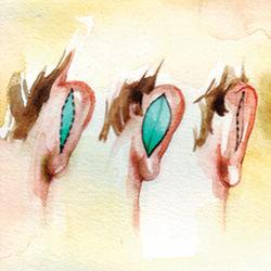 earsurgery_incision.jpg