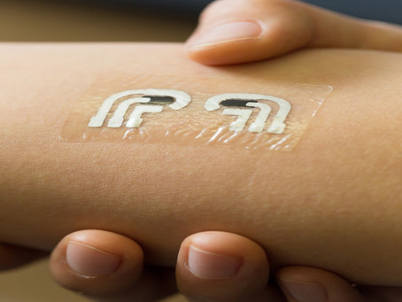 Temporary tattoo measures blood glucose levels