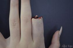 Missing Finger
