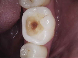 Decay removed from tooth