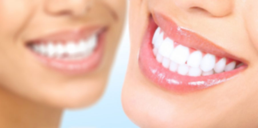 Dental Veneers..cosmetically providing that perfect smile.