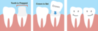 Dental Crowns..giving your tooth strength, structure and cosmetics.