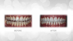 tooth whitening 2