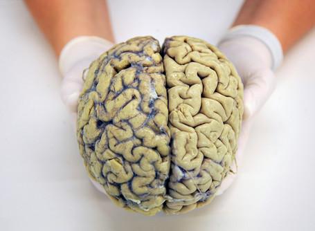 Vlaanderen strikt 'beste hersenonderzoekers ter wereld'