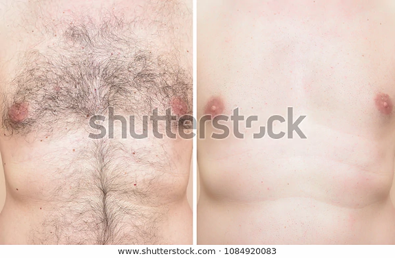 chest-man-before-after-trimming-600w-108