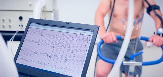 electrocardiograma-2.png