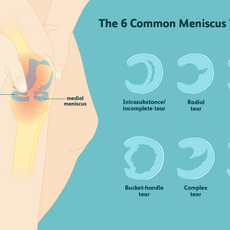 The 6 Common Meniscus Tears