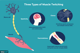 Three Types of Muscle Twitching