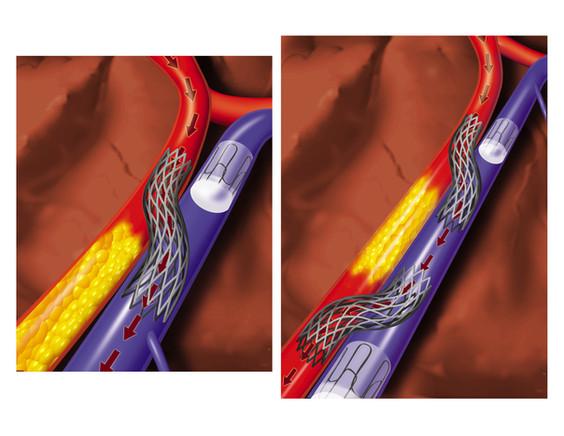 Dual stent bypass