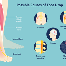 Possible Causes of Foot Drop