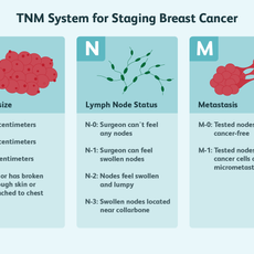 TNM System for Staging Breast Cancer