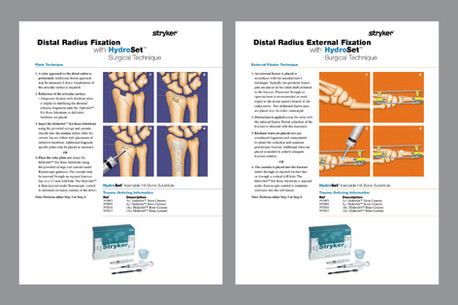 Distal Radius Fixation Sheets