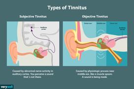 Types of Tinnitus