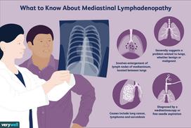 Mediastinal Lymphadenopathy