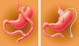 Gastric bypass and banding