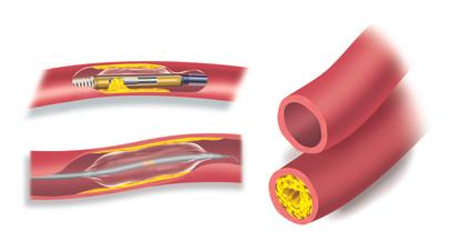 Coronary Atherectomy Catheters