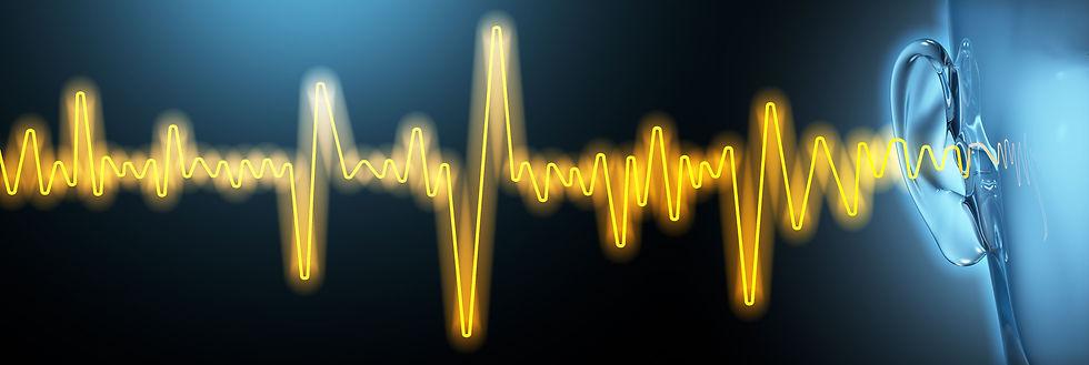 Yellow Sound Wave.jpg