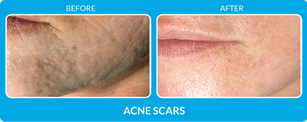 AcneScars_B&A-005.png