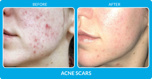 AcneScars_B&A-002.png