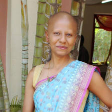 """""""Takli"""": Reflections on being a bald Indian woman"""