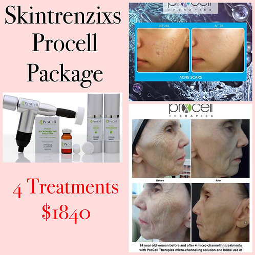 Procell Package of 4 Treatments - Service Only