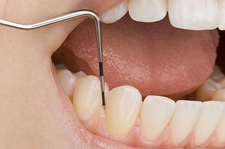 三苫歯科歯周病検査