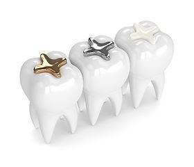 三笘歯科歯の詰物