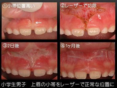 松原歯科レーザー治療症例