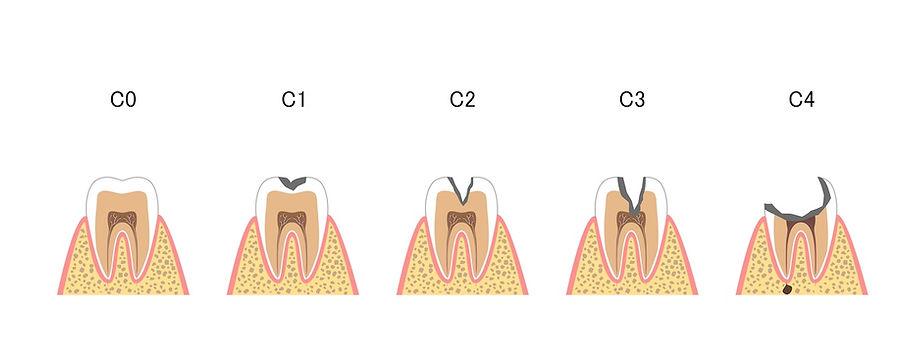 三笘歯科虫歯治療
