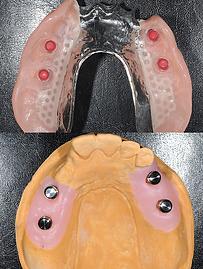 ロケーターインプラント義歯2.png