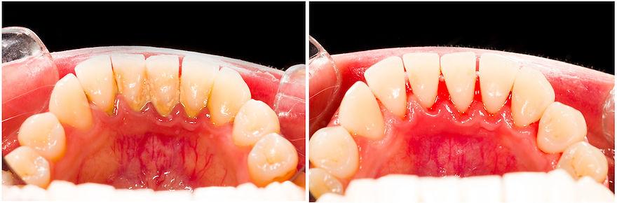 歯のメンテナンス前後