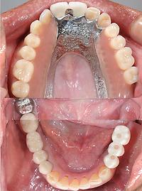 ロケーターインプラント義歯.png