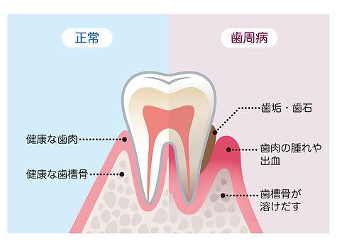 歯周病説明図